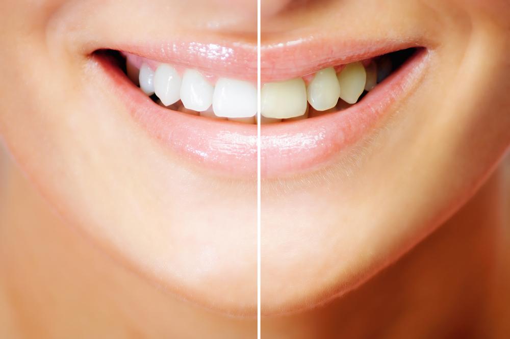 http://pearlsdentistry.in/wp-content/uploads/2015/11/TeethWhitening.jpg