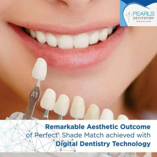 https://pearlsdentistry.in/wp-content/uploads/2019/04/10-540x540.jpg